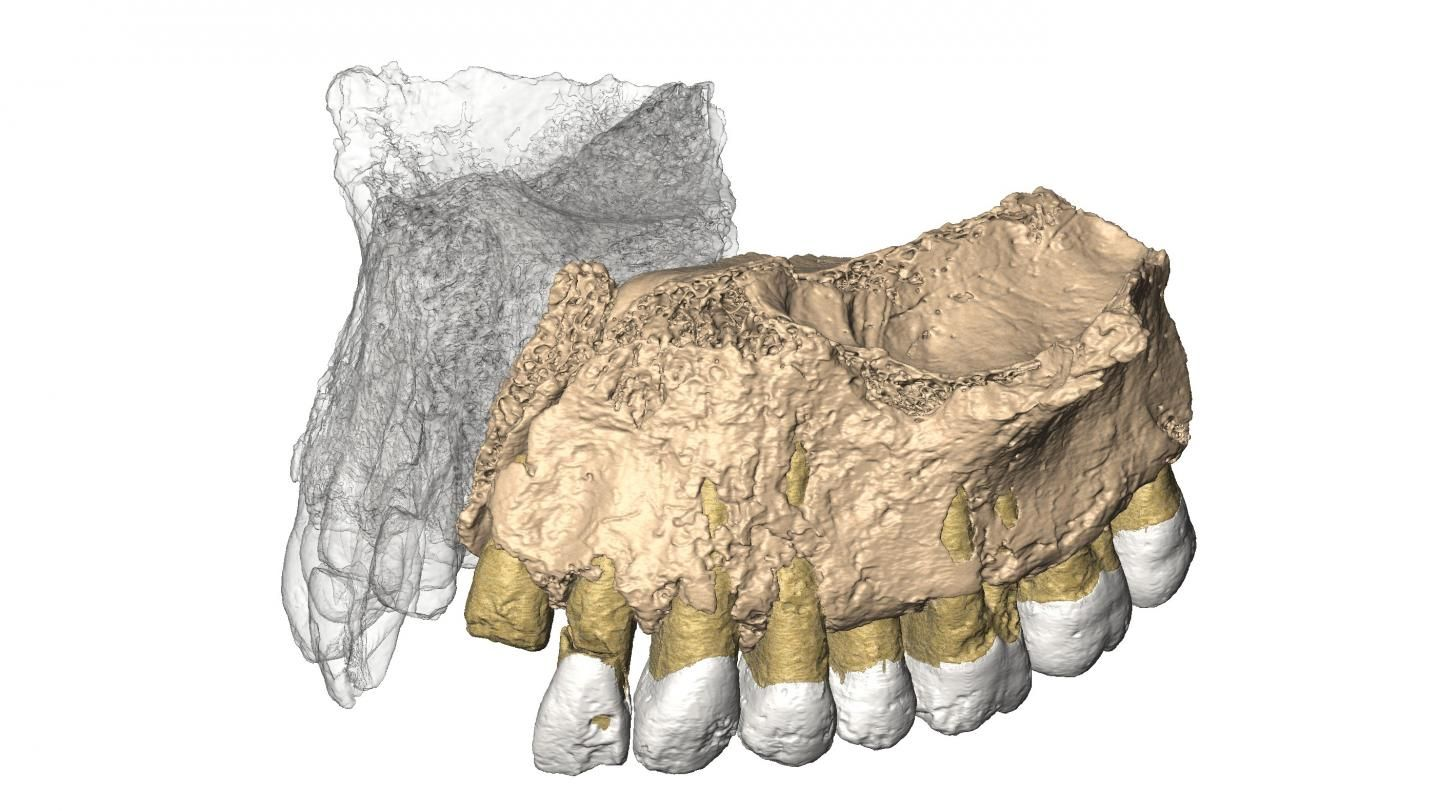 1_26_Jaw reconstruction
