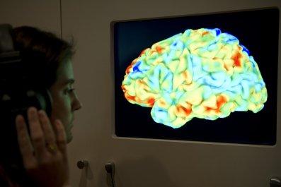 fMRI music London