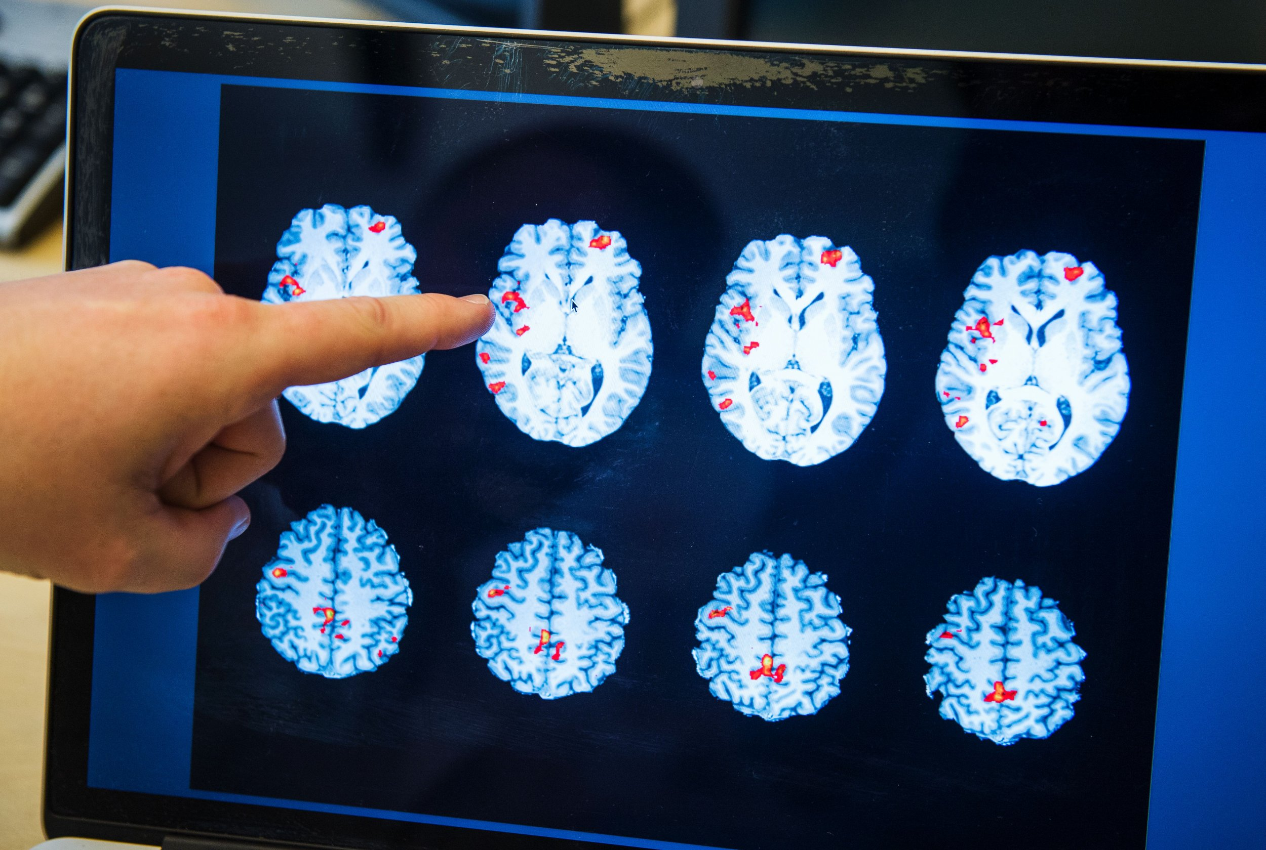 brain scan pedophiles