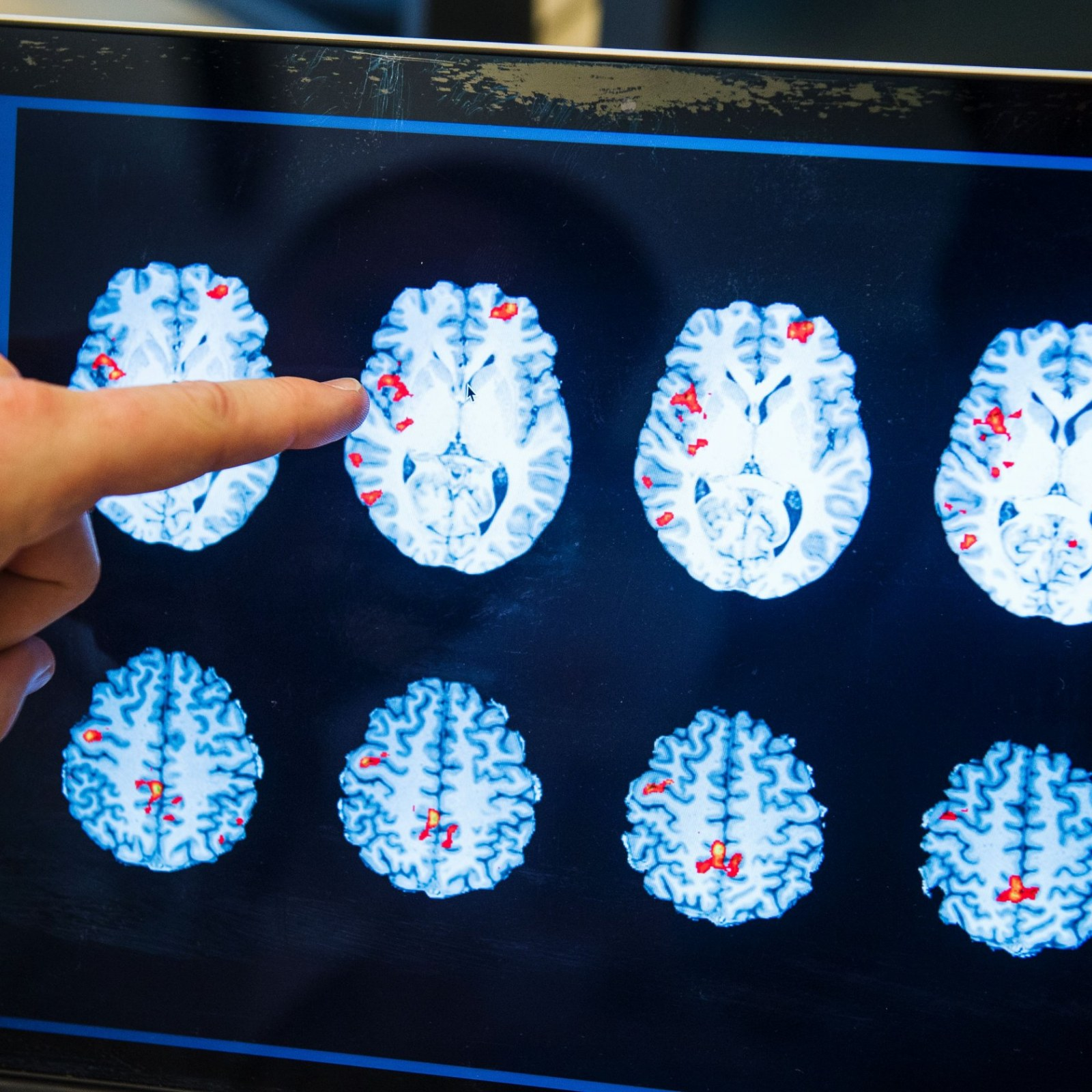 How Autism Changes Brain Scans Of >> Could An Antibiotic Treat Autism Medication To Reduce Brain Cell