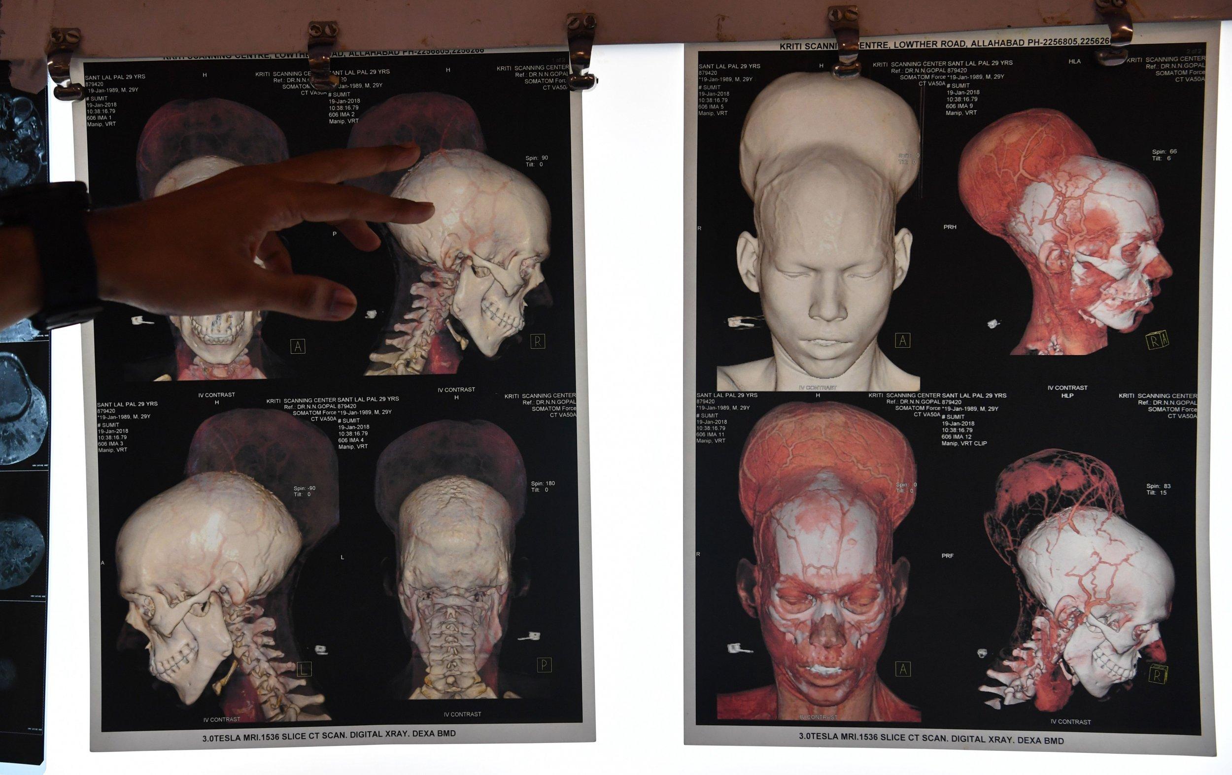 brain tumor india