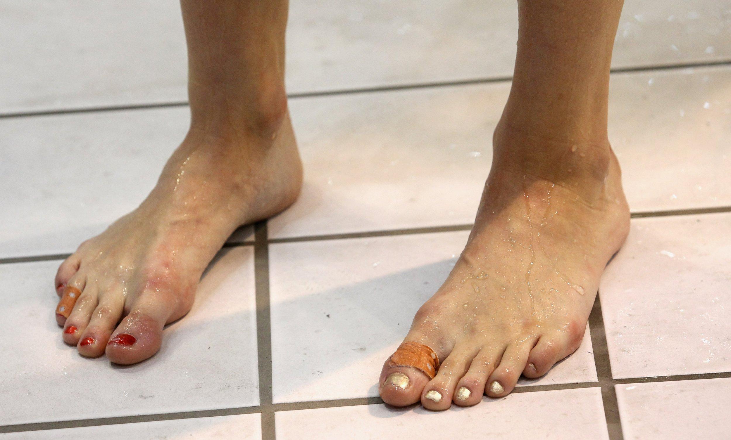 toenails swimmer