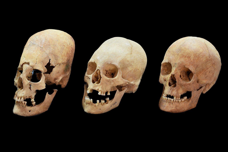A-MedievalSkullsB2