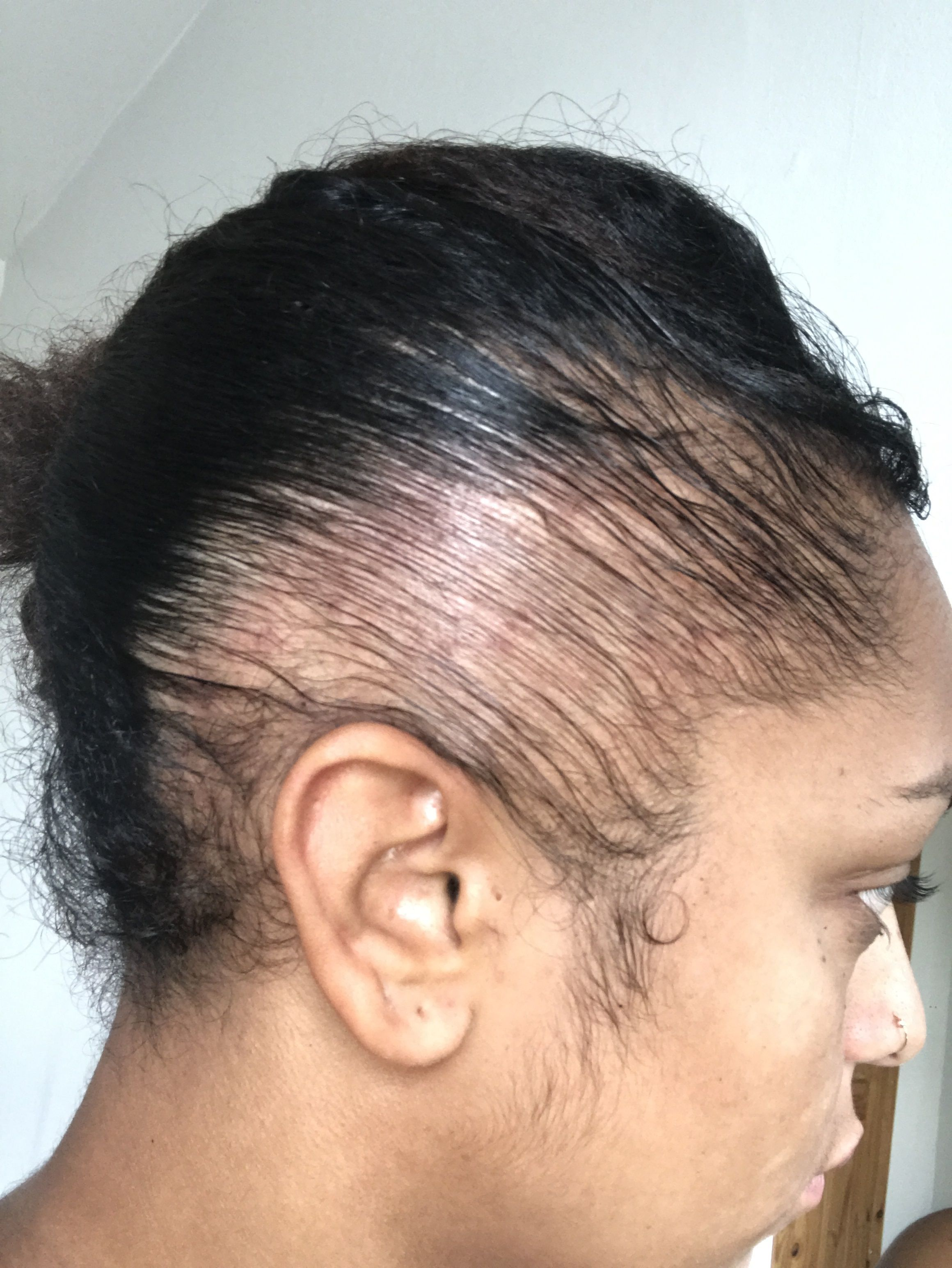 Traction Alopecia Young Female Singer Warns Of Self Inflicted Hair