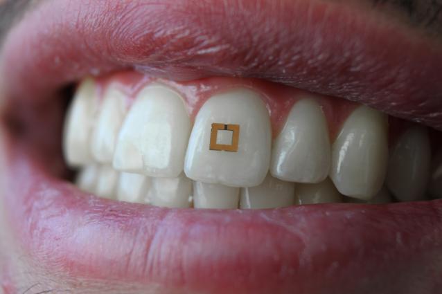 3_25_sensor on tooth