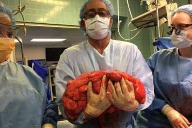 Surgeon w Tumor