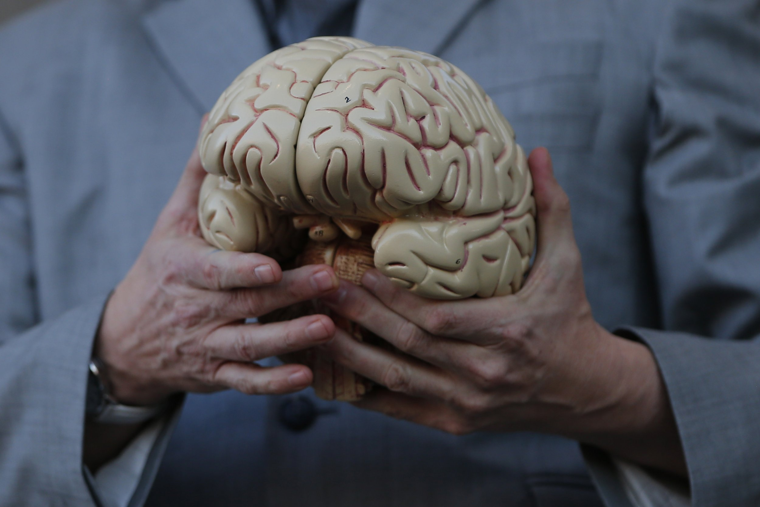 alzheimer u2019s disease starts in childhood  with symptoms found in babies less than a year old