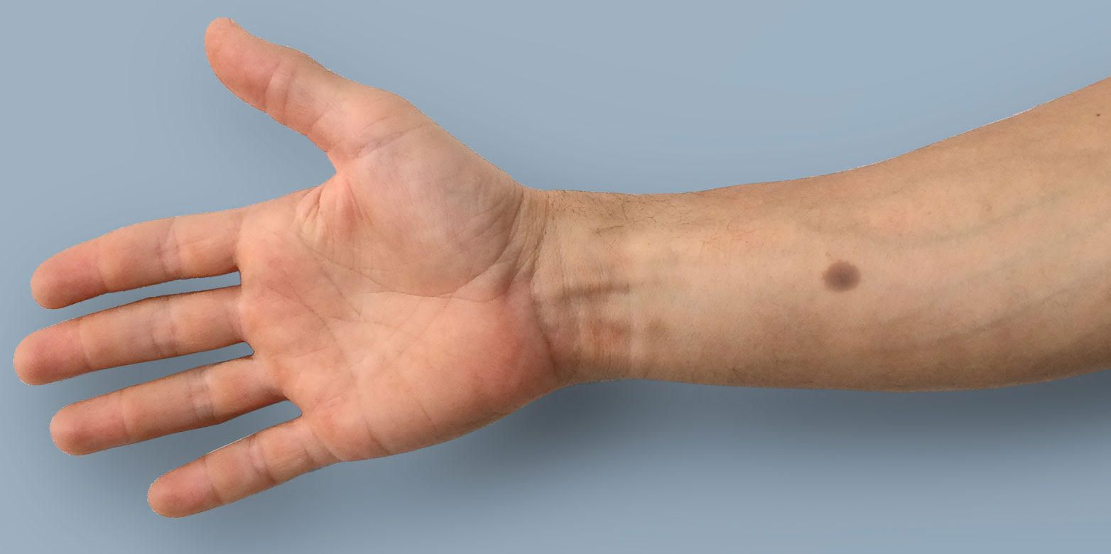 Doctors want to implant color changing mole tattoo to for Artificial skin for tattooing