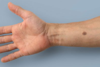 cancer-detecting-implant
