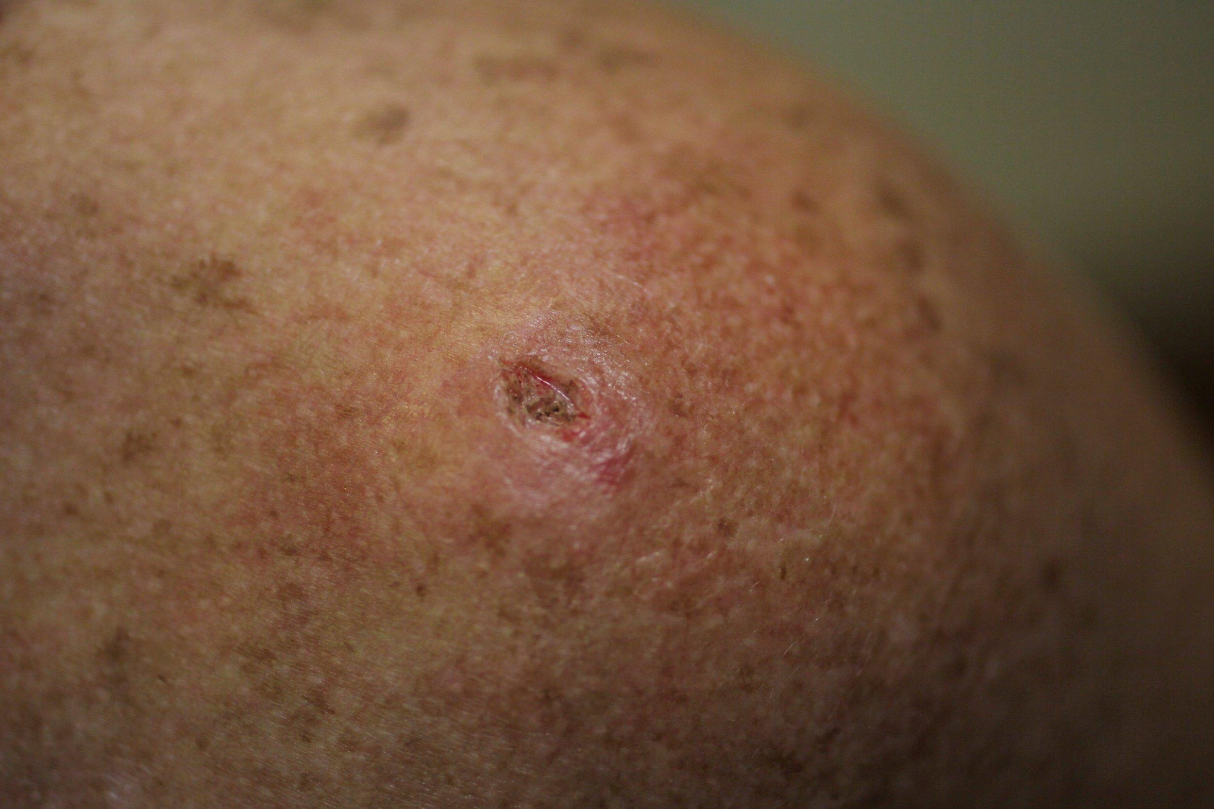 04/20/skin cancer