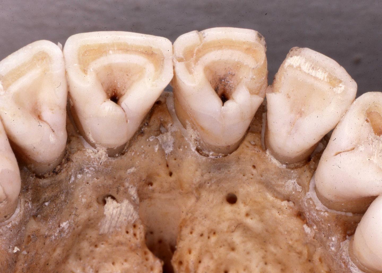 4_24_Shoveled Teeth