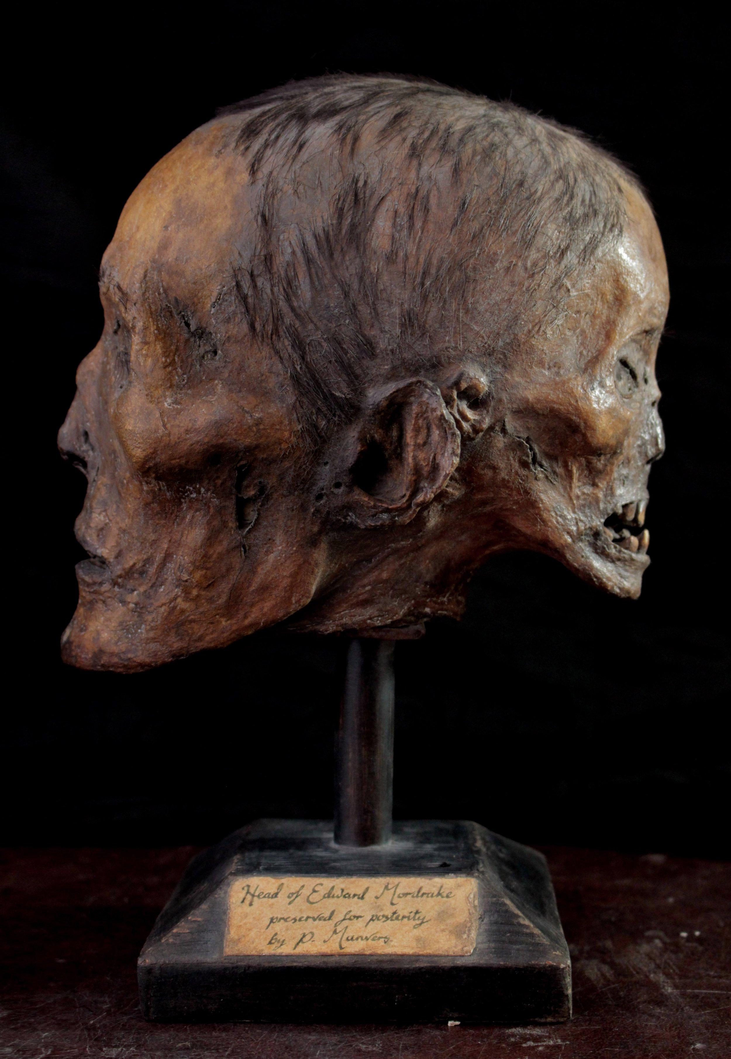 Edward Mordrake's head