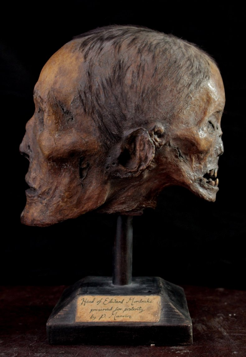 Edward Mordrake's head