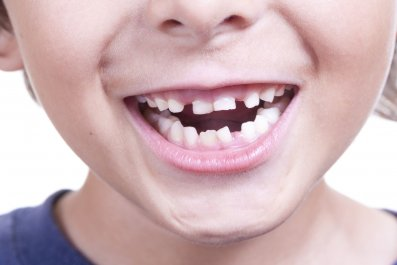 teeth-children-stock