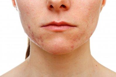 acne-skin-stock