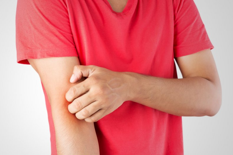 skin-itch-stock